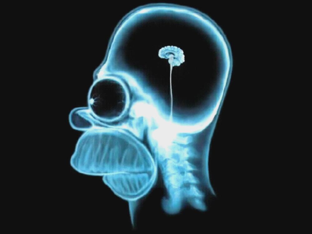 01 homer x-ray brain