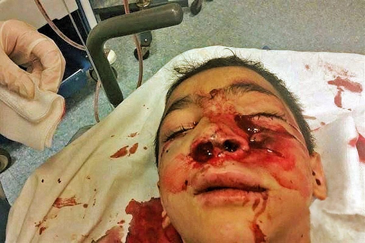 00 palestine. kid injured by isreali cops. 22.05.15